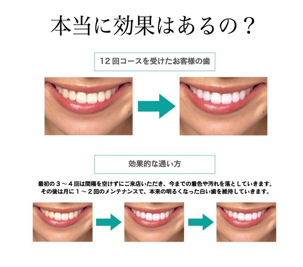 本当に効果はあるの? 12回コースを受けたお客様の歯 効果的な通い方 最初の3~4回は間隔を空けずにご来店いただき、今までの着色や汚れを落としていきます。 その後は月に1~2回のメンテナンスで、本来の明るくなった白い歯を維持していきます。